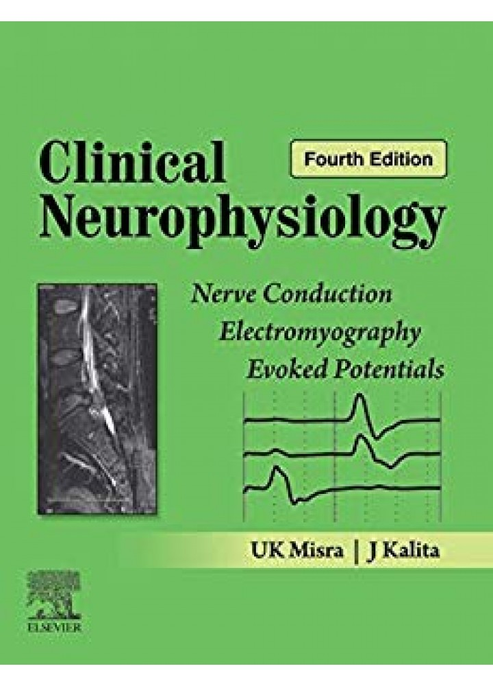 Clinical Neurophysiology : Nerve Conduction Electromyography Evoked Potentials 4e