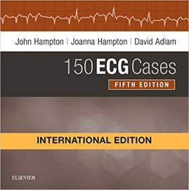 150 ECG Cases International Edition 5e